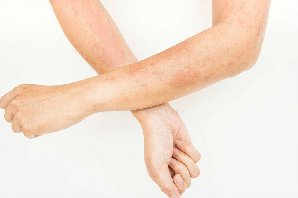 Types of Skin Rashes