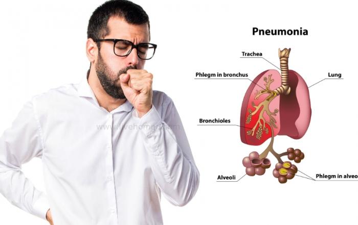 Pneumonia Disorder