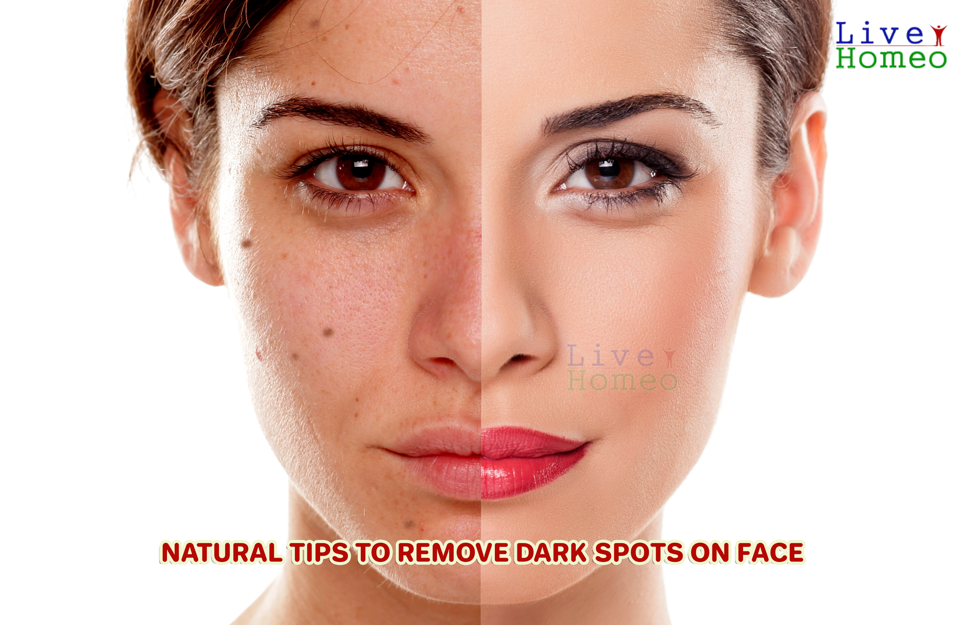 Natural tips to remove dark spots on face