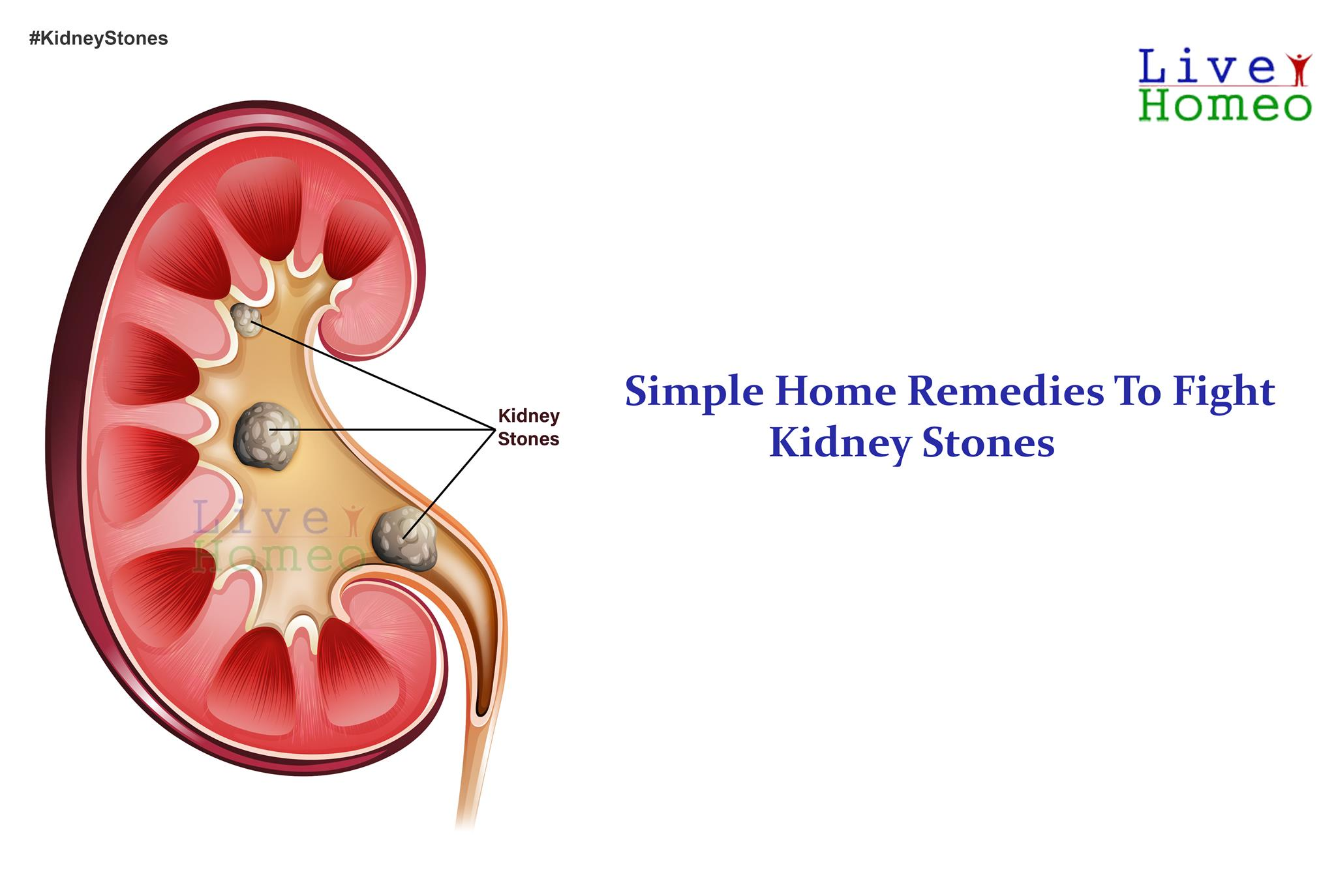 Simple home remedies to figh kidney stones